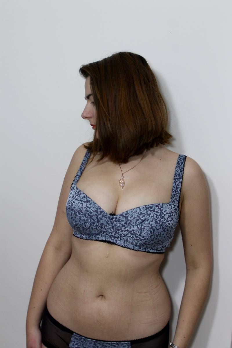 Boylston bra with wires removed